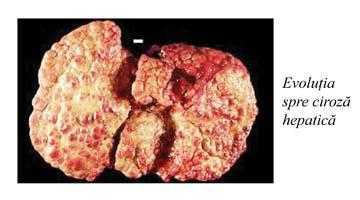 Cum  prevenim şi reducem îmbolnăvirea prin hepatita virală C 8